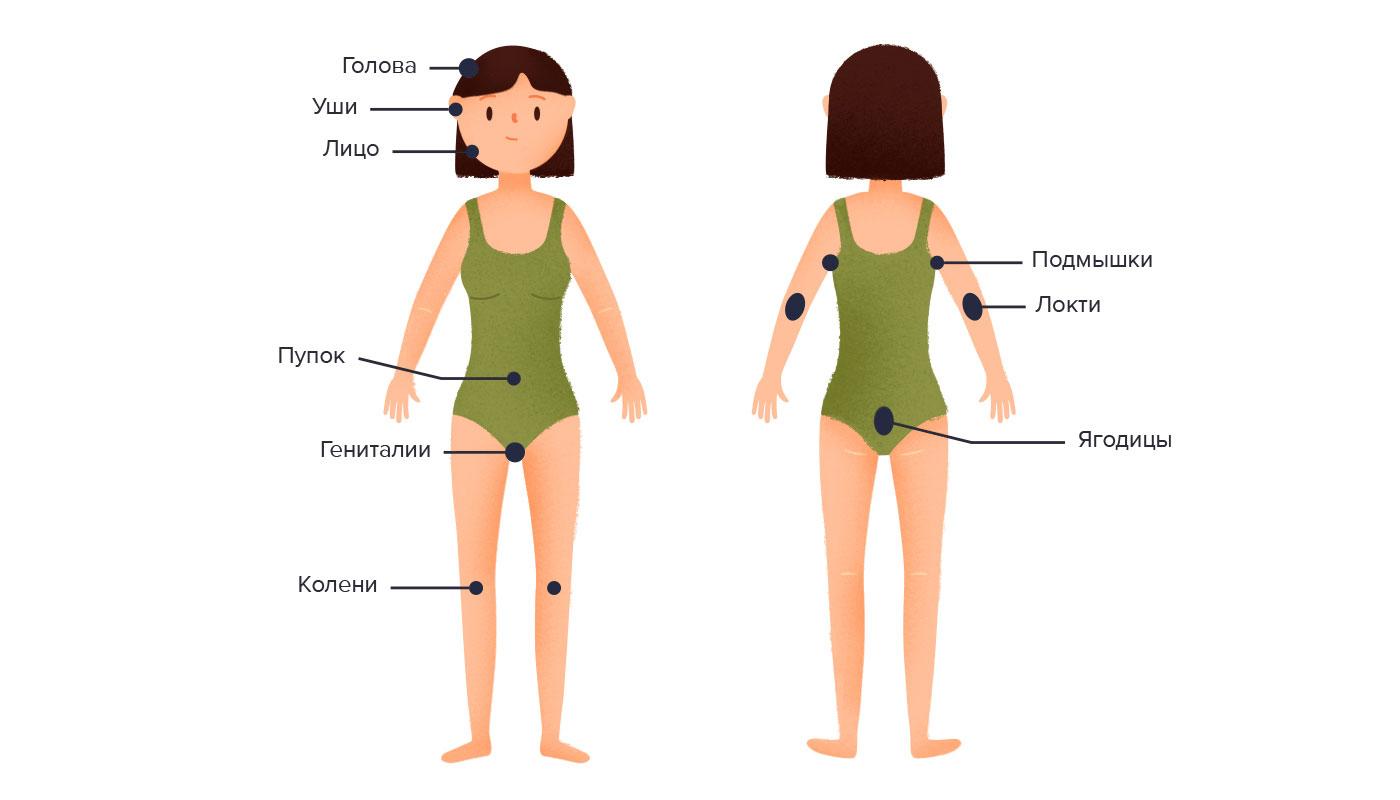 Симптомы псориаза. Причины и развитие.