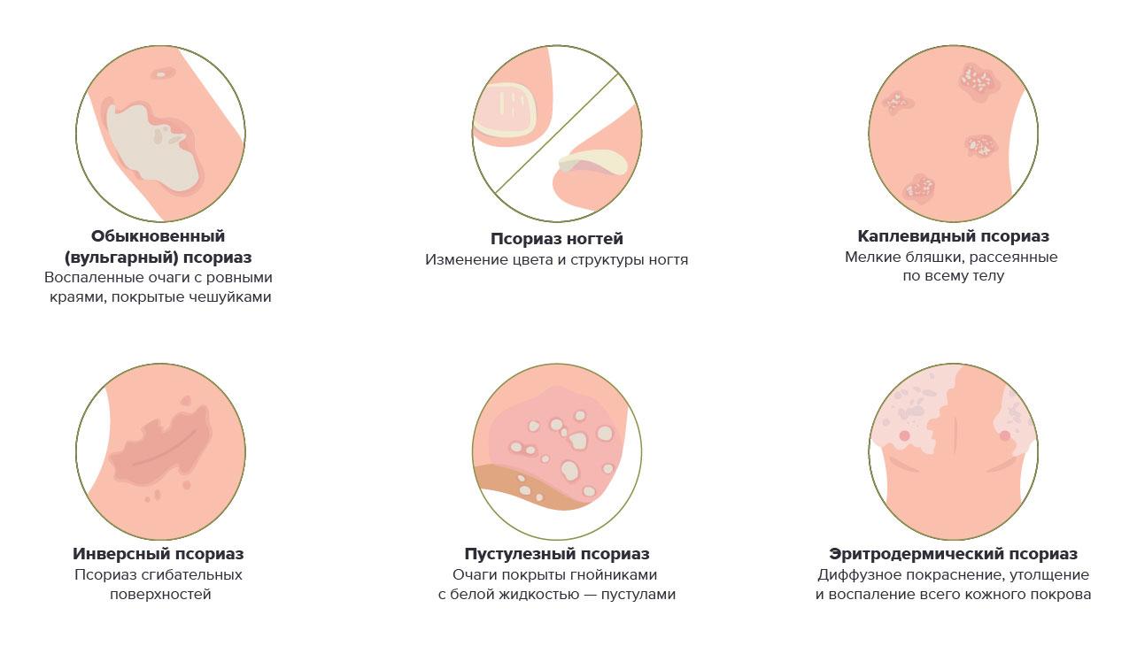 Каплевидный псориаз диета