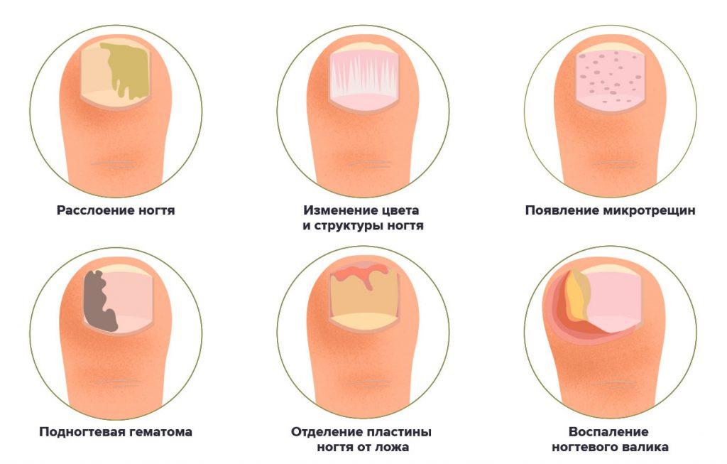 Стадии псориаза ногтей
