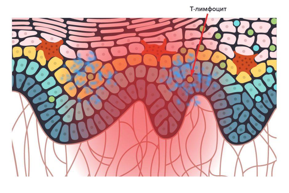 Т-лимфоцит вырабатывает цитокины в коже