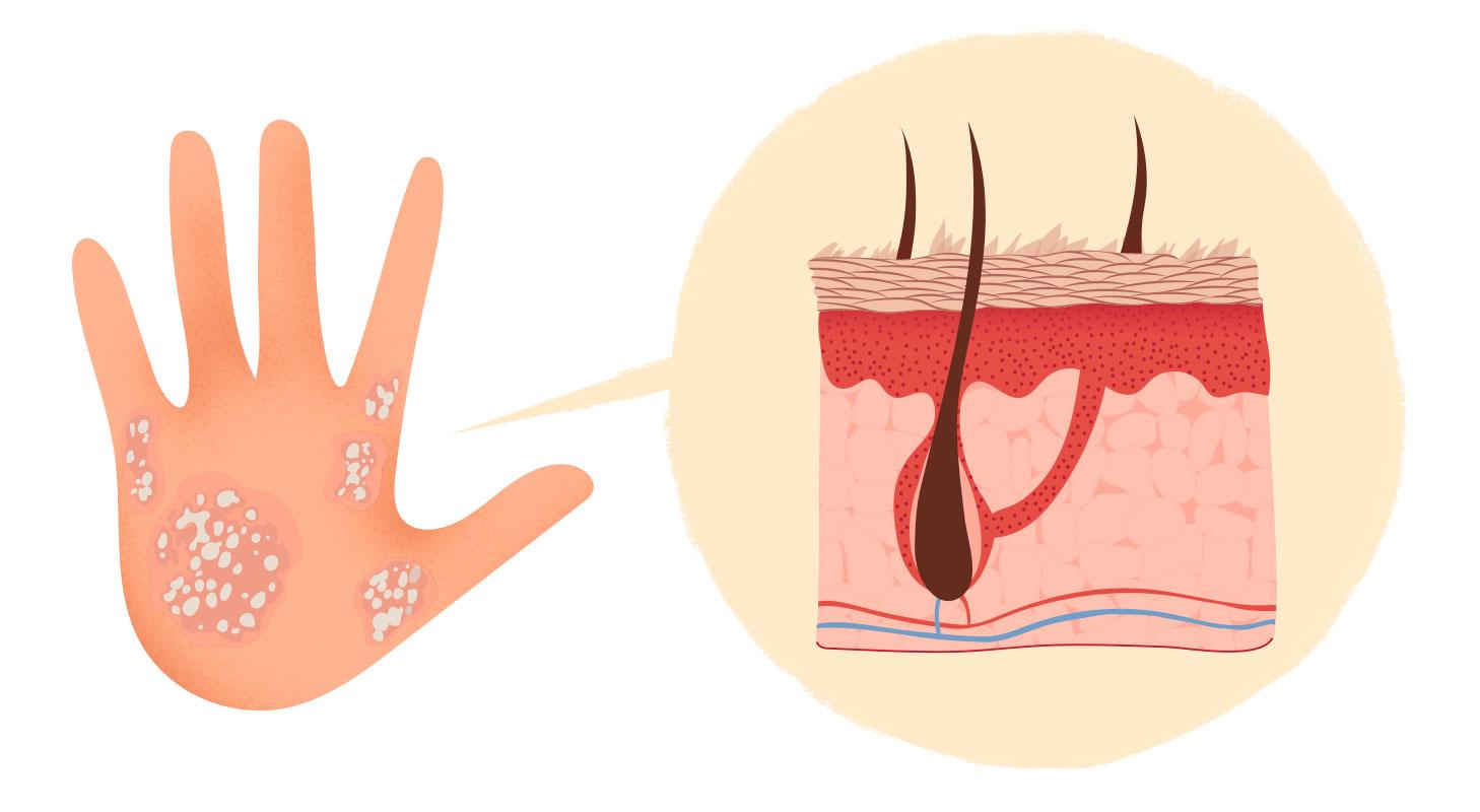 Псориаз Симптомы Лечение Диета. Симптомы и лечение разных видов псориаза, диета